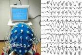 Electroencefalografe